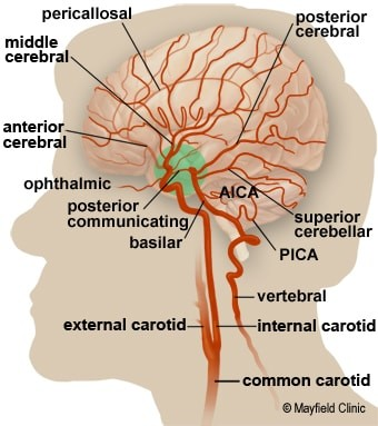 شریان های مغز