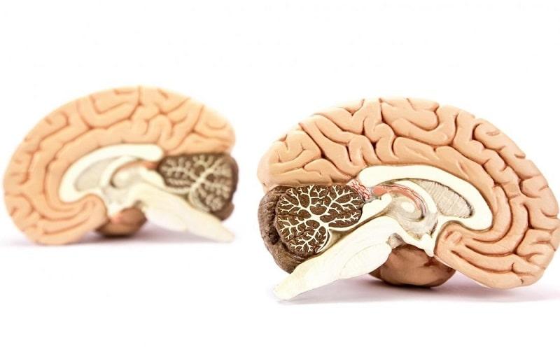 محققان نشان دادند که انسان تنها تحت فرمان یک نیمکره ی مغزی نیست و به طور یکسان از هر دو نیمکره استفاده میکند.