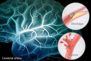 سکته ی مغزی شامل دو نوع ایسکیمیک و هموراژیک میباشد