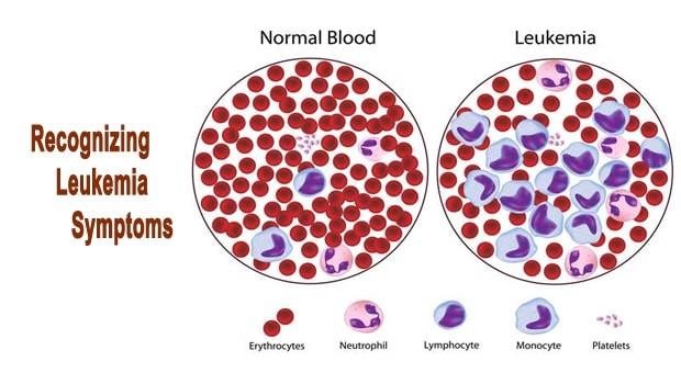 کاربرد سلول های بنیادی در سرطان خون