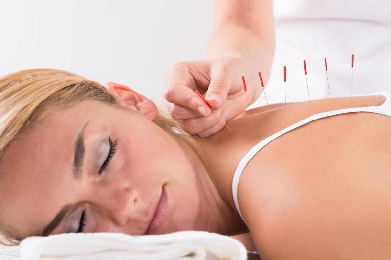گزارش شده است که طب سوزنی در کنترل بیماری صرع میتواند موثر باشد
