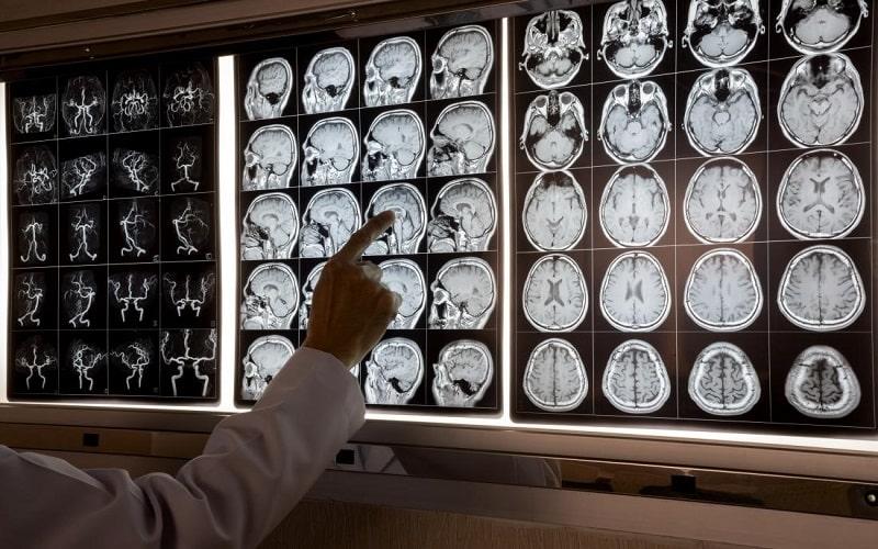 متخصص علوم اعصاب با استفاده از روش های تصویربرداری عصبی مانند اسکن MRI میتوانند نشان دهند که چه اتفاقی در مغز در حال رخ دادن است