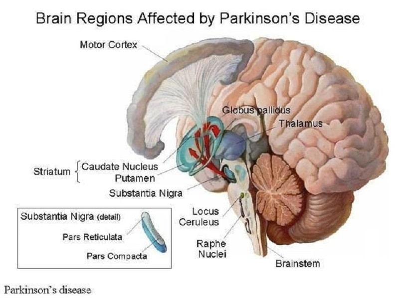 بیماری پارکینسون مغز را تحت تاثیر قرار میدهد